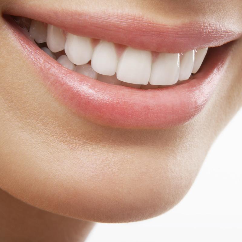 Tannbleking, behandlinger, Råh