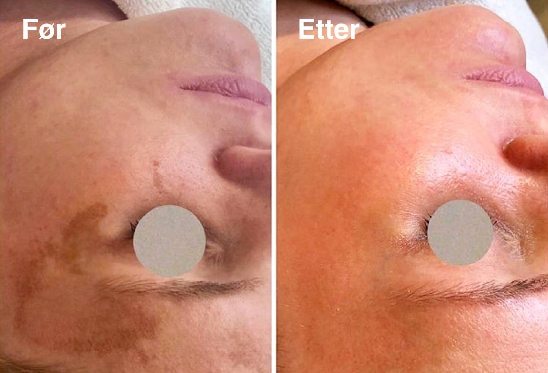 Cosmelan pigmentbehandling