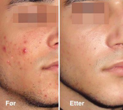 Acnelan, behandling før og etter