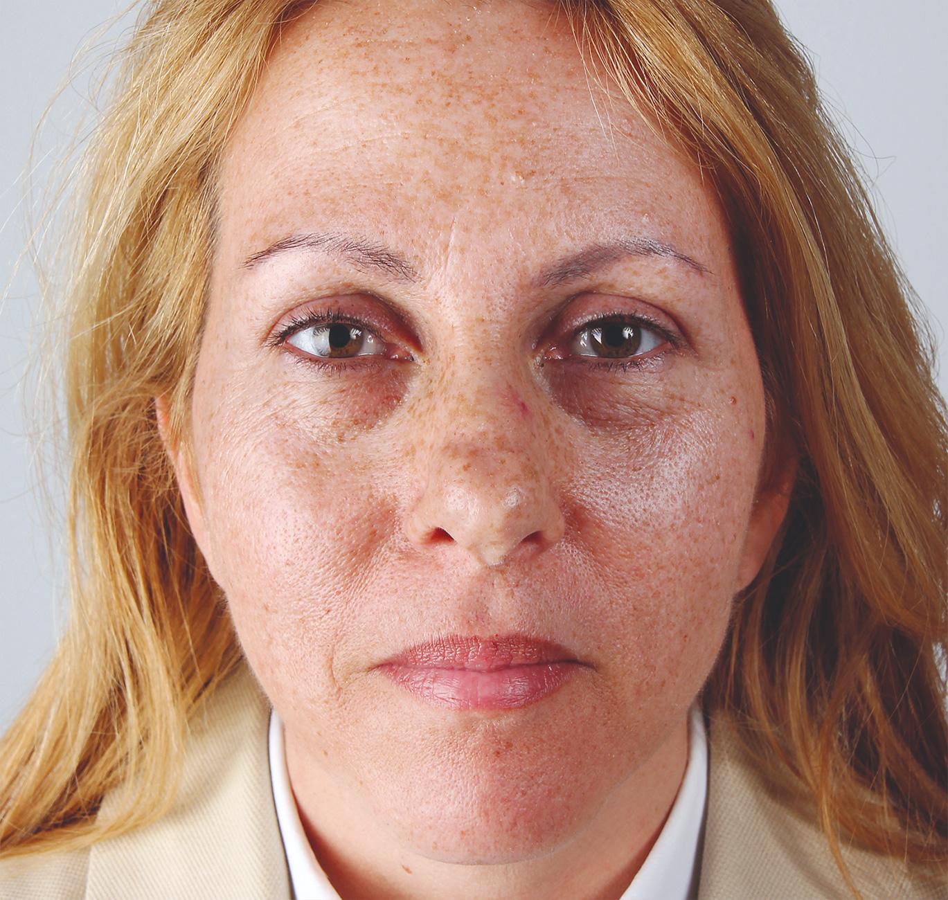 Dermatude Metatherapy, før behandling
