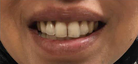 Tannbleking før, behandlinger, Råh