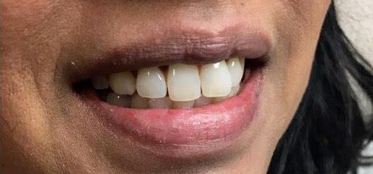 Tannbleking etter, behandlinger, Råh