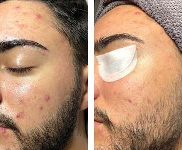 Mandelpeel, før og etter