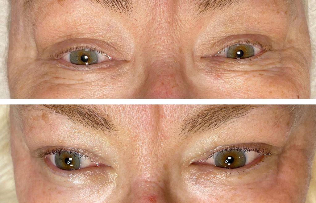 Eyecon øyebehandling, før og etter