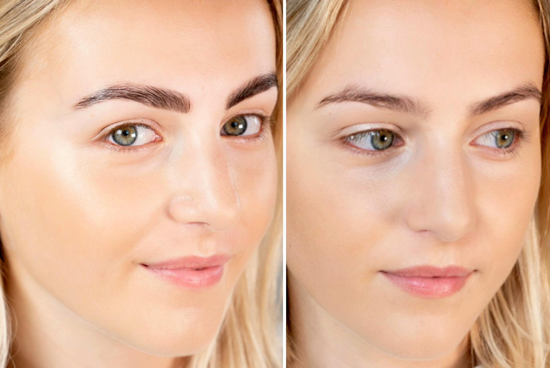 Hva er brow lamination?