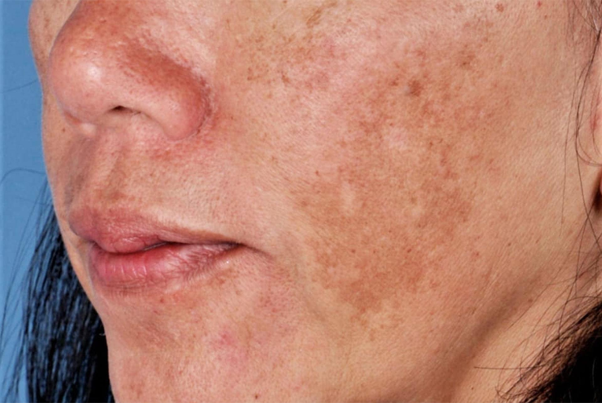 Pigmentering i huden